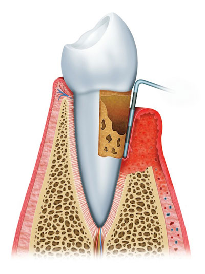 Stage 3: Advanced Periodontitis