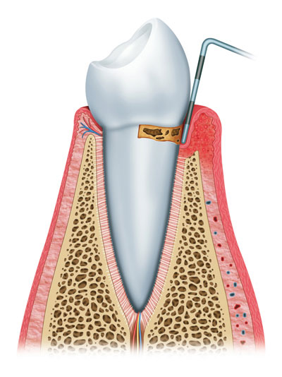 There are three main stages of gum disease: