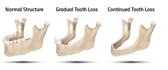 The Progression of Bone Loss